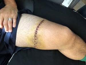 Clayton Porter Injury_blog